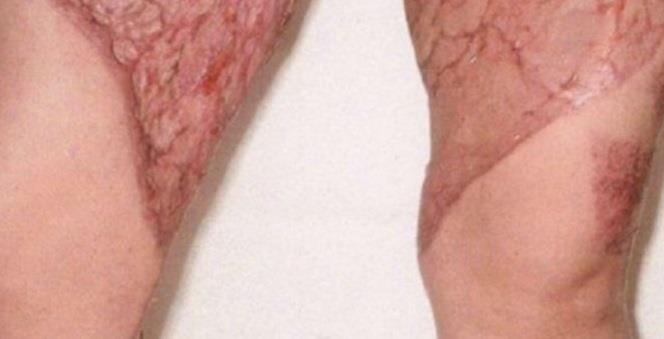 Resultado de imagen para Mujer estuvo a punto de perder sus piernas por depilarse